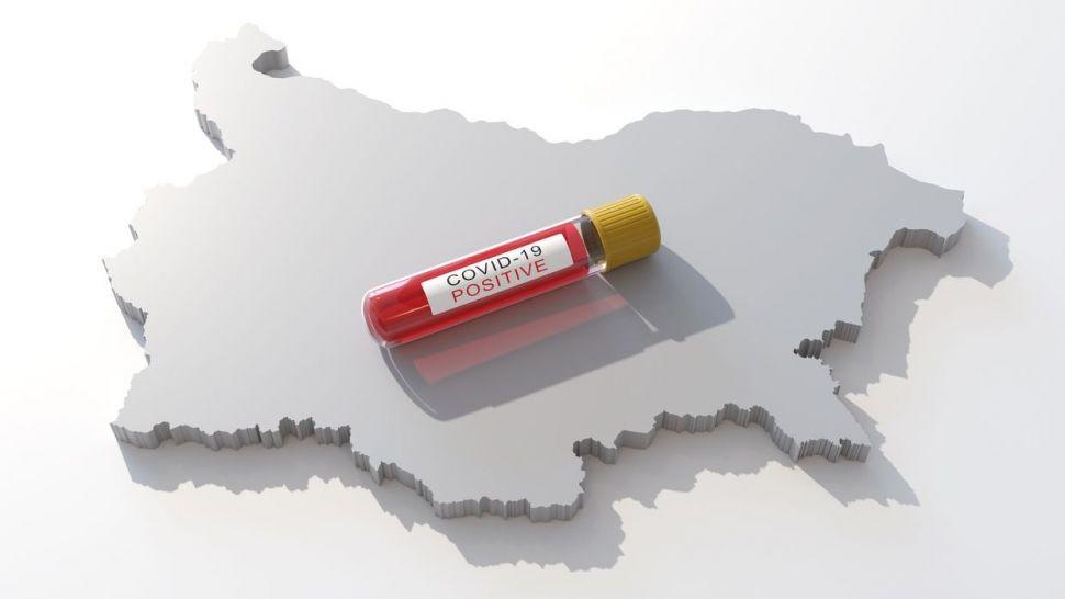 Бизнесът за Пловдив осигурява апаратура за лечението на коронавирус с кръвна плазма